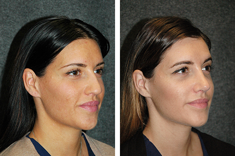 open rhinoplasty female patient photos new york