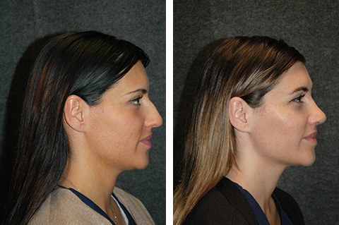 open rhinoplasty female patient photos