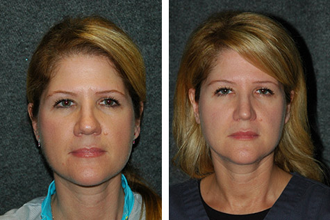 open rhinoplasty for women new york