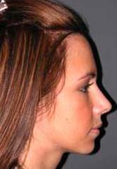 Rhinoplasty - Patient 28 - Lateral Right - After