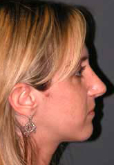 Rhinoplasty - Patient 27 - Lateral Right - After