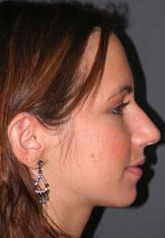 Rhinoplasty - Patient 28 - Lateral Right - Before
