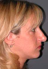 Rhinoplasty - Patient 27 - Lateral Right - Before