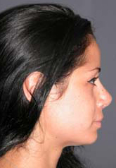 Rhinoplasty - Patient 36 - Lateral Right - After