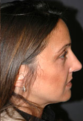 Rhinoplasty - Patient 17 - Lateral Right - After