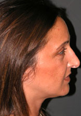 Rhinoplasty - Patient 17 - Lateral Right - Before