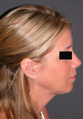 Rhinoplasty - Patient 29 - Lateral Right - After
