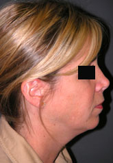 Rhinoplasty - Patient 29 - Lateral Right - Before