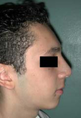 Rhinoplasty - Patient 41 - Lateral Right - After