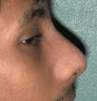 Rhinoplasty - Patient 42 - Lateral Right - After