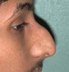 Rhinoplasty - Patient 42 - Lateral Right - Before