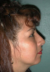 Rhinoplasty - Patient 39 - Lateral Right - After