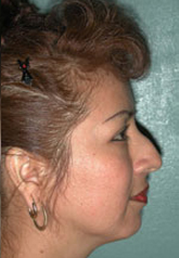 Rhinoplasty - Patient 39 - Lateral Right - Before