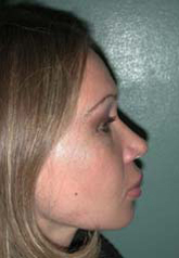 Rhinoplasty - Patient 38 - Lateral Right - After