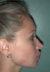 Rhinoplasty - Patient 38 - Lateral Right - Before