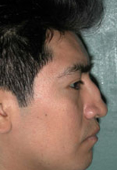 Rhinoplasty - Patient 40 - Lateral Right - Before