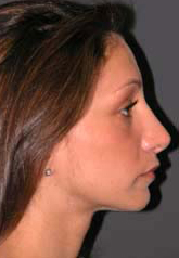 Rhinoplasty - Patient 15 - Lateral Right - After