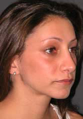 Rhinoplasty - Patient 15 - Obl Right - After