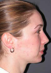 Rhinoplasty - Patient 24 - Lateral Right - After