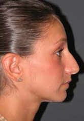 Rhinoplasty - Patient 15 - Lateral Right - Before