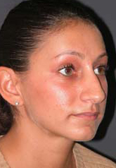 Rhinoplasty - Patient 15 - Obl Right - Before
