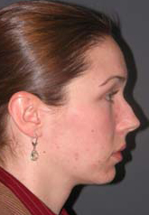 Rhinoplasty - Patient 24 - Lateral Right - Before