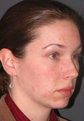 Rhinoplasty - Patient 24 - Obl Right - Before