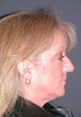 Rhinoplasty - Patient 34 - Lateral Right - Before