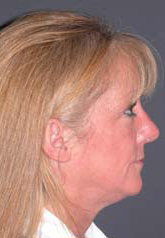 Rhinoplasty - Patient 34 - Lateral Right - After