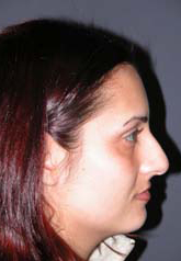Rhinoplasty - Patient 2 - Lateral Right - Before
