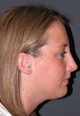 Rhinoplasty - Patient 35 - Lateral Right - After