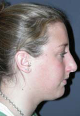 Rhinoplasty - Patient 35 - Lateral Right - Before