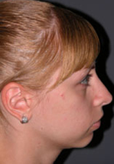 Rhinoplasty - Patient 18 - Lateral Right - After