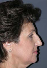Rhinoplasty - Patient 37 - Lateral Right - Before