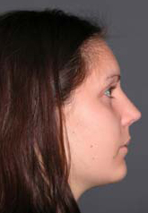 Rhinoplasty - Patient 32 - Lateral Right - After