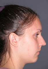 Rhinoplasty - Patient 32 - Lateral Right - Before