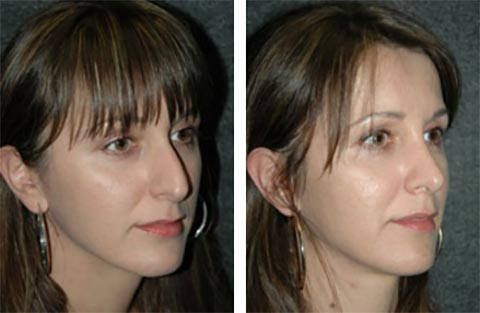 worlds best rhinoplasty surgeon