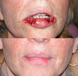 Lip Reconstruction Patient Photo