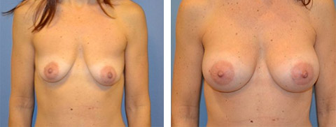 best breast augmentation surgery