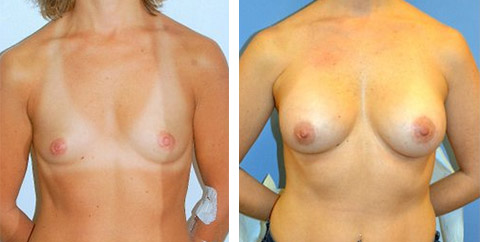 breast augmentation li new york
