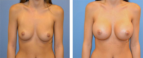 breast augmentation long island