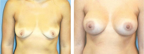 breast augmentation photos new york
