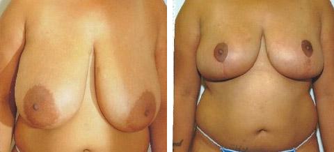 breast reduction long island