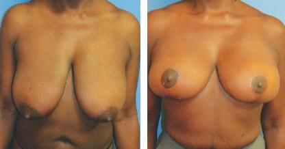 breast reduction ny