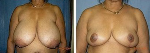 long island breast reduction