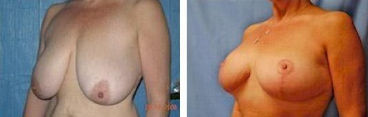new york breast reduction
