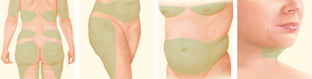 Liposuction Procedure Areas