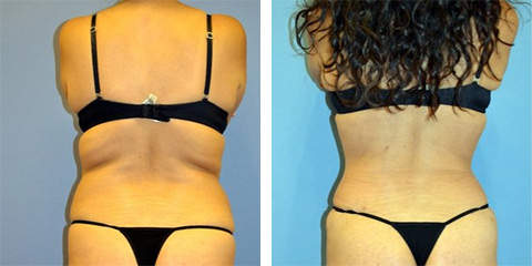 liposuction after photos