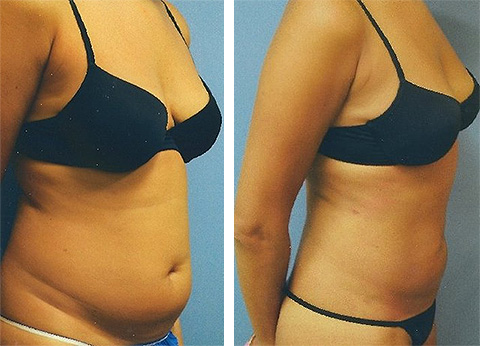 liposuction great neck ny
