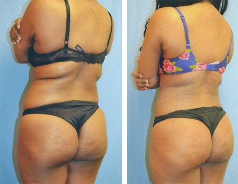 liposuction patient photos